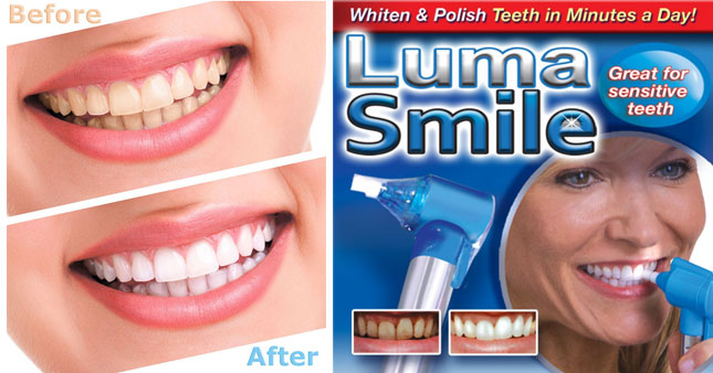 50% OFF! Luma Smile Teeth Whitener worth Rs. 1,300 for just Rs. 650!